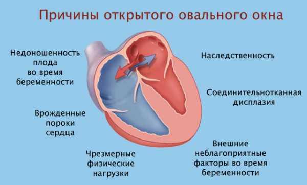 Овальное окно в сердце у грудничка – Открытое овальное окно у грудничка: причины, симптомы и лечение