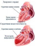 Последствия ангина у детей – Осложнения после ангины у детей, какие могут быть последствия ангины у детей?