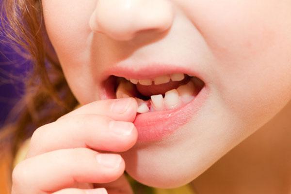 Зубы выпадают во сколько – Во сколько лет выпадают молочные зубы? Ищите ответ здесь!