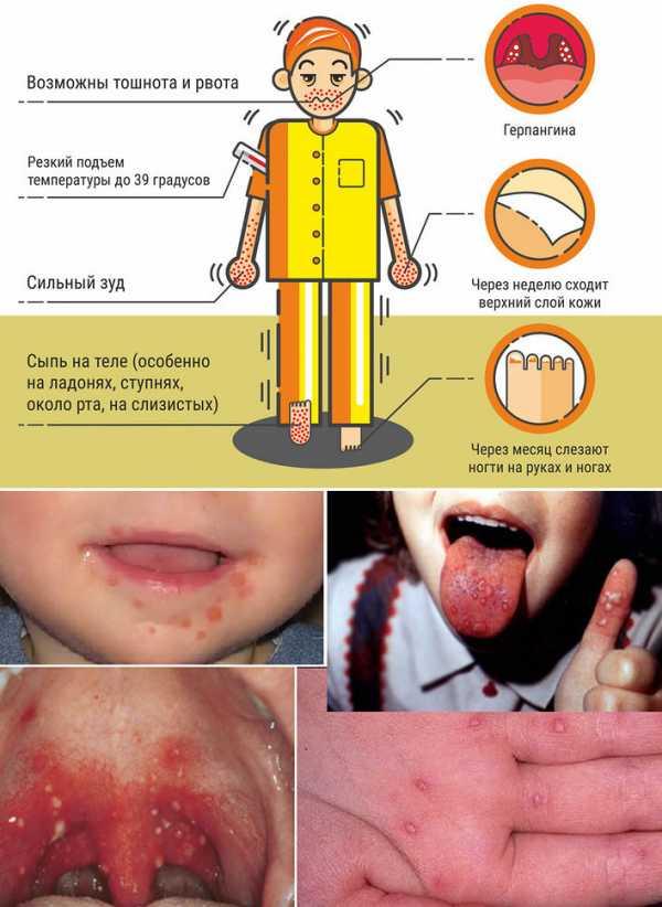 Вопрос: вирус рука - нога - рот срочно